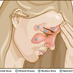 Kill Your Sinus Infection With This Simple But Powerful Herb